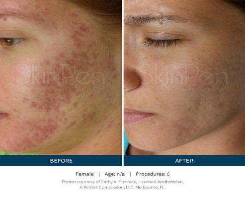 Microneedling for Acne/Skin Rejuvenation in Southern